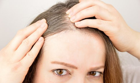白髪はサプリメントで対策!効果的な選択と飲み方!